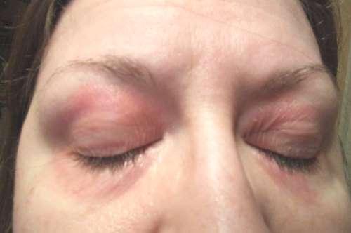 kathy-eyes-eczema